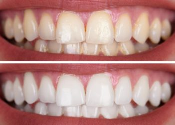 Close-up Of A Smiling Woman's Teeth Before And After Whitening