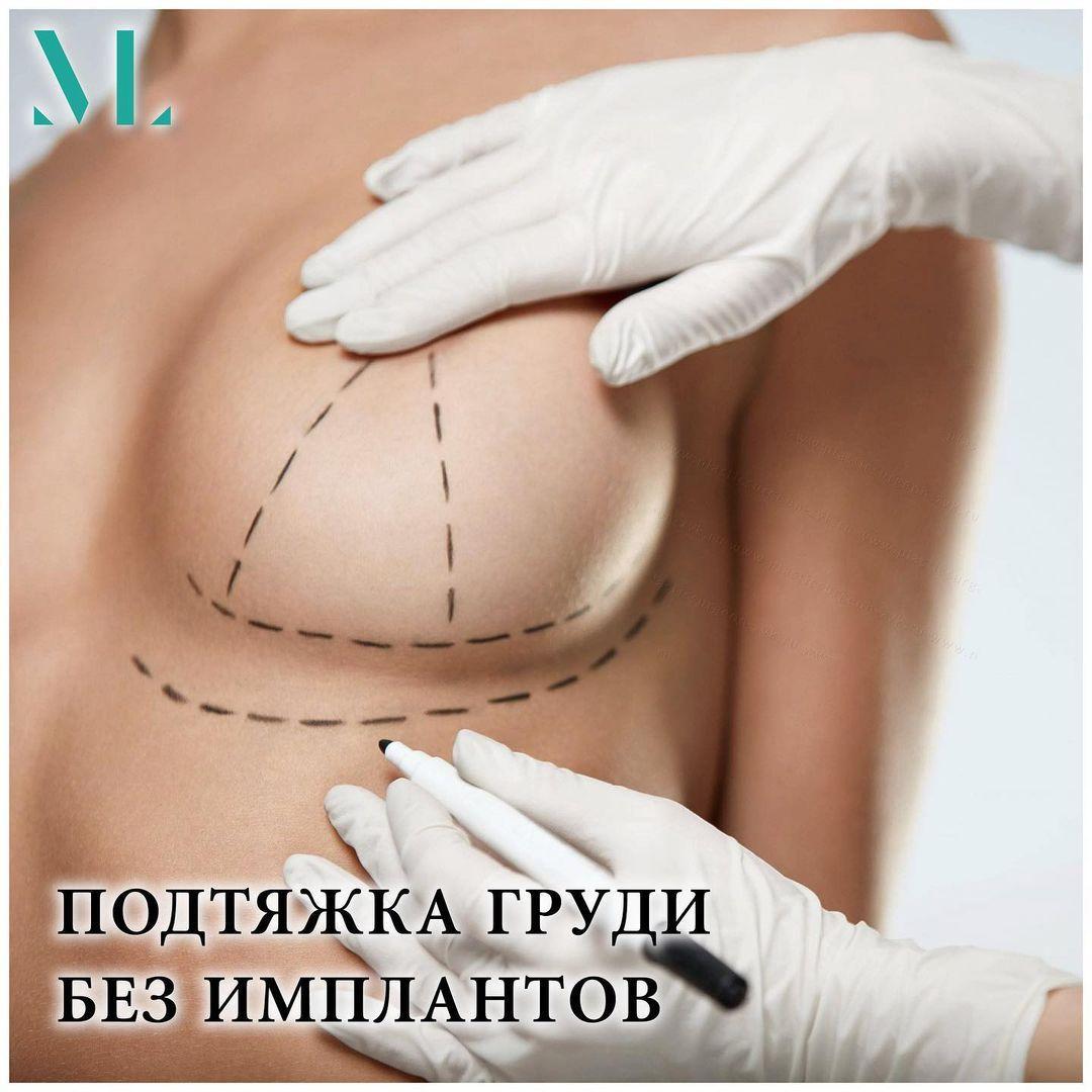 Подтяжка груди без имплантов