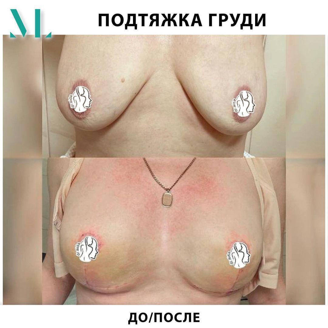 Якорная (Т-образная) подтяжка груди